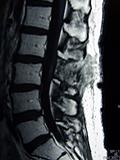 MRI画像5-1