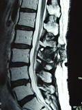 MRI画像5-2